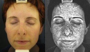 picture of sun damage via uv photography
